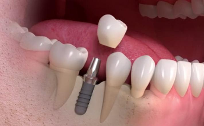 How You Can Avoid Dental Implant Failure?