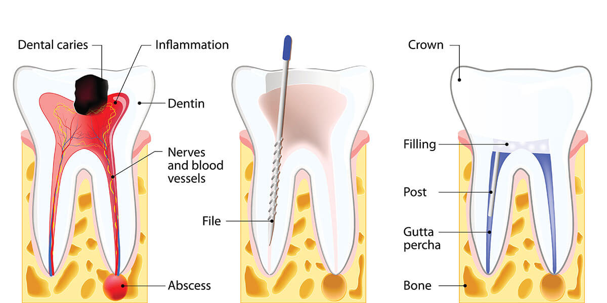 Root Canal Treatment: What is the Use?
